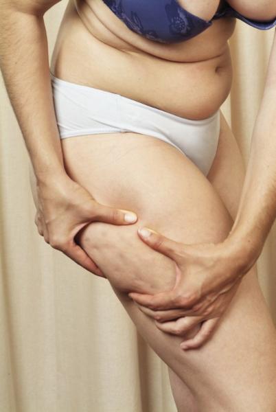 Frau mit leichter Cellulite
