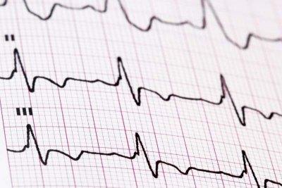 Diagnose-EKG