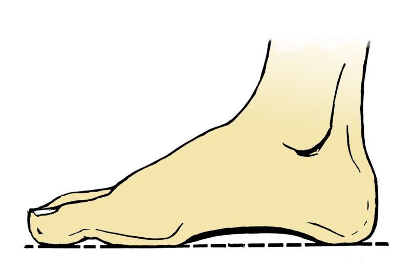 Längsgewölbe des Fußes